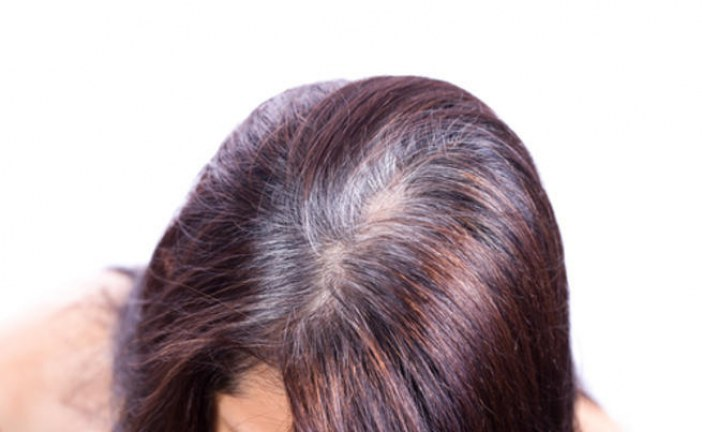 7 أسباب وراء تساقط الشعر